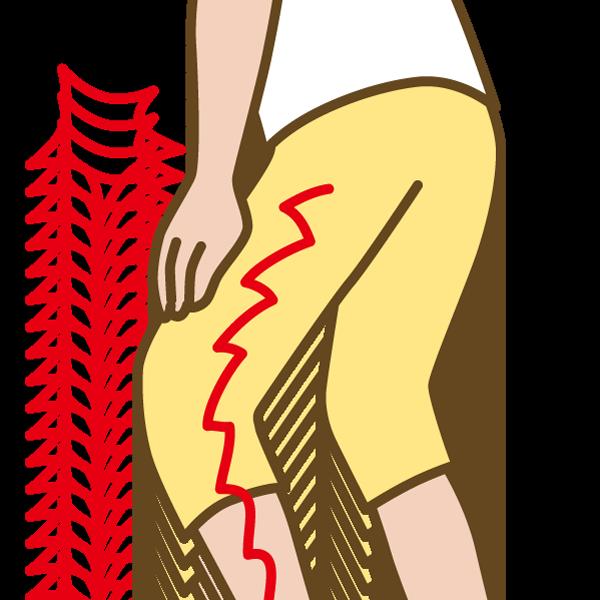 坐骨神経痛の痺れ(しびれ)がひどい坐骨神経とは?|