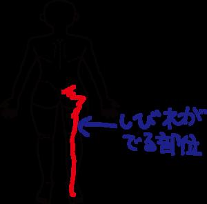 太ももを押すと痛い!太ももを押して痛いなら考えるべき3つの病気